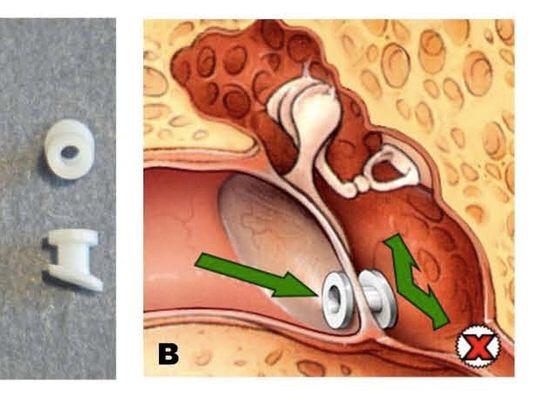 how to get rid of fluid behind eardrum